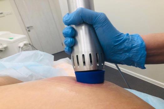 Ударно-волновая терапия при лечении целлюлита