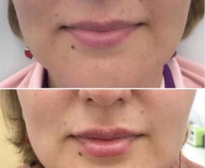 Увеличение губ Belotero Lips